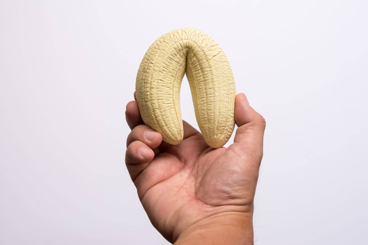 Penisbruch: Der Penis eines Engländers brach zum ersten Mal horizontal