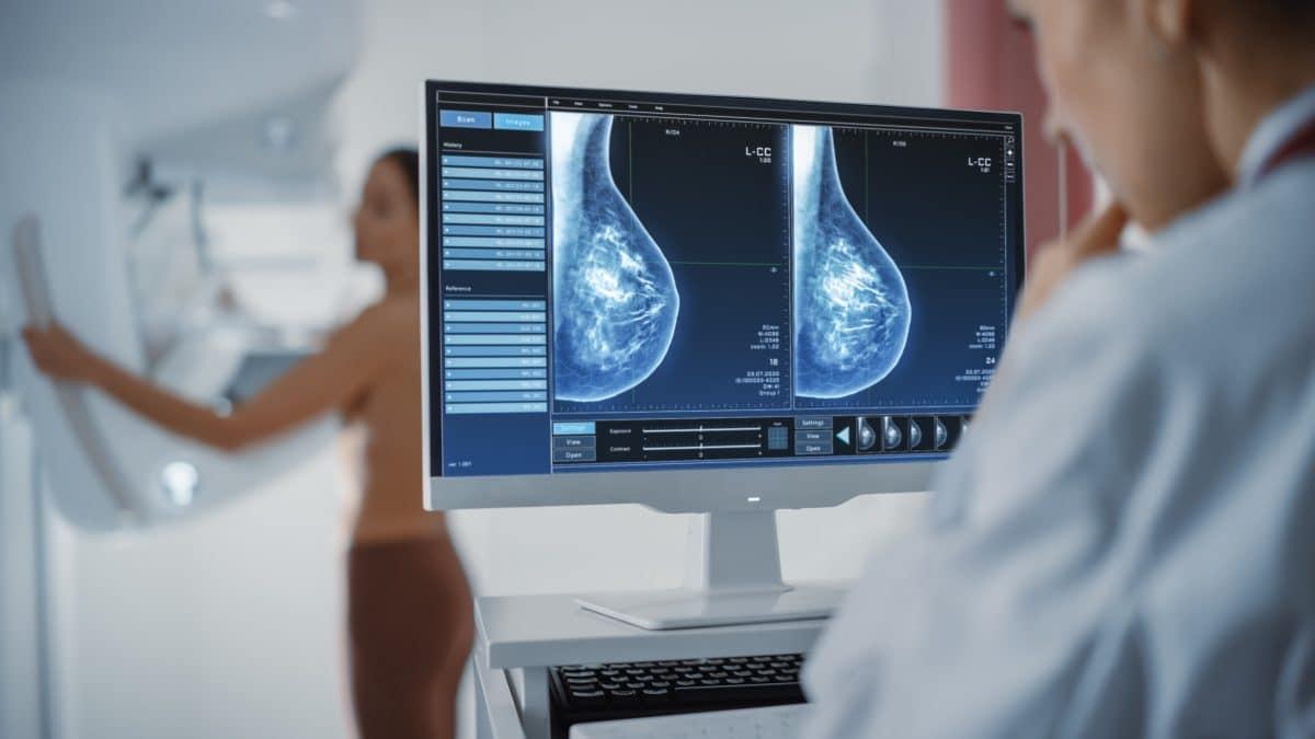 Großbritannien gibt Brustkrebs Medikament frei